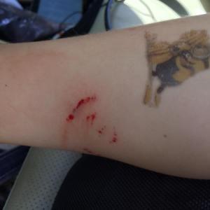 Stephen july 2015 snake bite 2